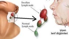 Lenfoma Nedir?