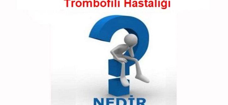 Trombofili Hastalığı Nedir? Tedavisi Ve Belirtileri Nelerdir?