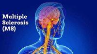 Multipli Skleroz Hastalığı (MS)