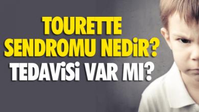 Photo of Tourette Sendromu Nedir?
