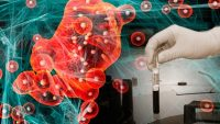 Yapay Zeka İle Kanser Tedavisi Geliyor