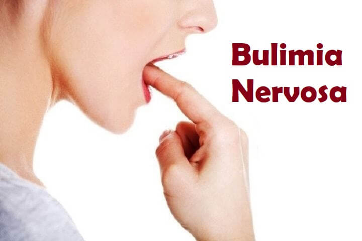 Photo of Bulimia Nervosa (Kusma Hastalığı)