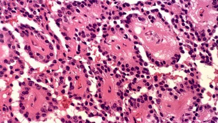 Bağ Doku Hücreleri Nelerdir?