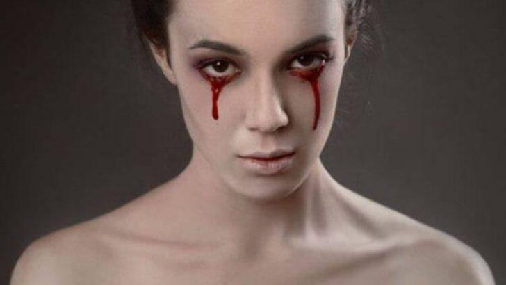 Hematohidrosis (Kan Ağlama Hastalığı)
