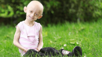 Progeria Sendromu