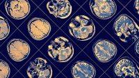 Beynini Amipler Yedi