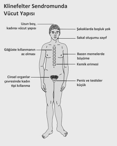 Klinefelter Sendromu