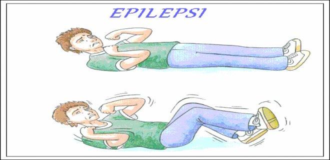 Epilepsi Nöbeti