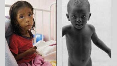 Photo of Malnutrisyon Nedir?
