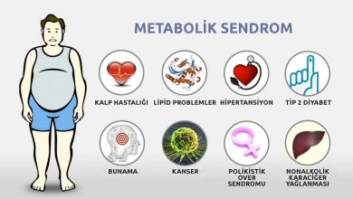 Photo of Metabolik Sendrom (Sendrom X)